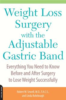 Weight Loss Surgery with the Adjustable Gastric Band: Everything You Need to Know Before and After Surgery to Lose Weight Successfully Robert Sewell M.D. M.D. and Linda Rohrbough