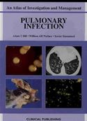 download Pulmonary Infection: An Atlas of Investigation and Diagnosis book
