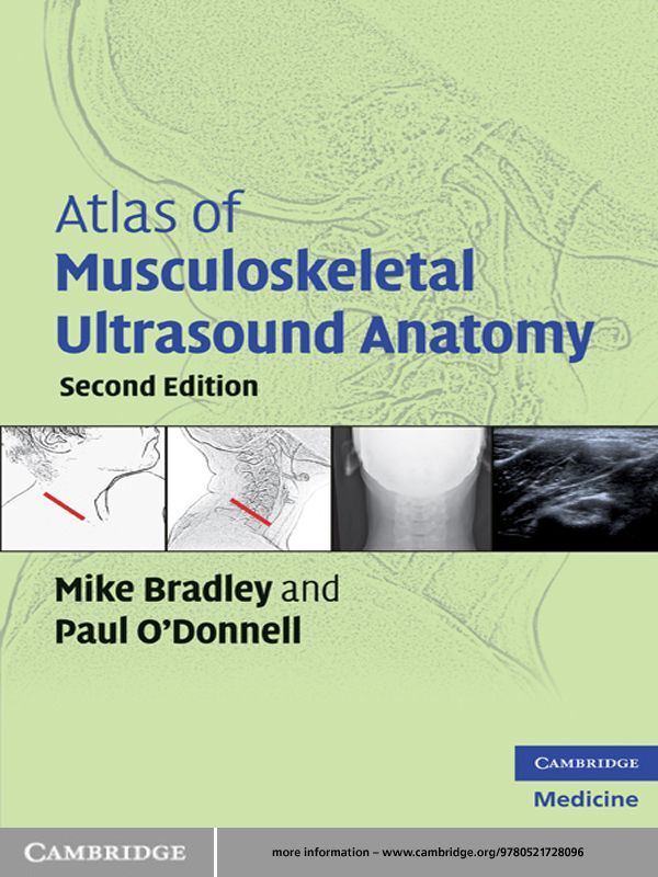 Atlas of Musculoskeletal Ultrasound Anatomy By: Mike Bradley,Paul O'Donnell