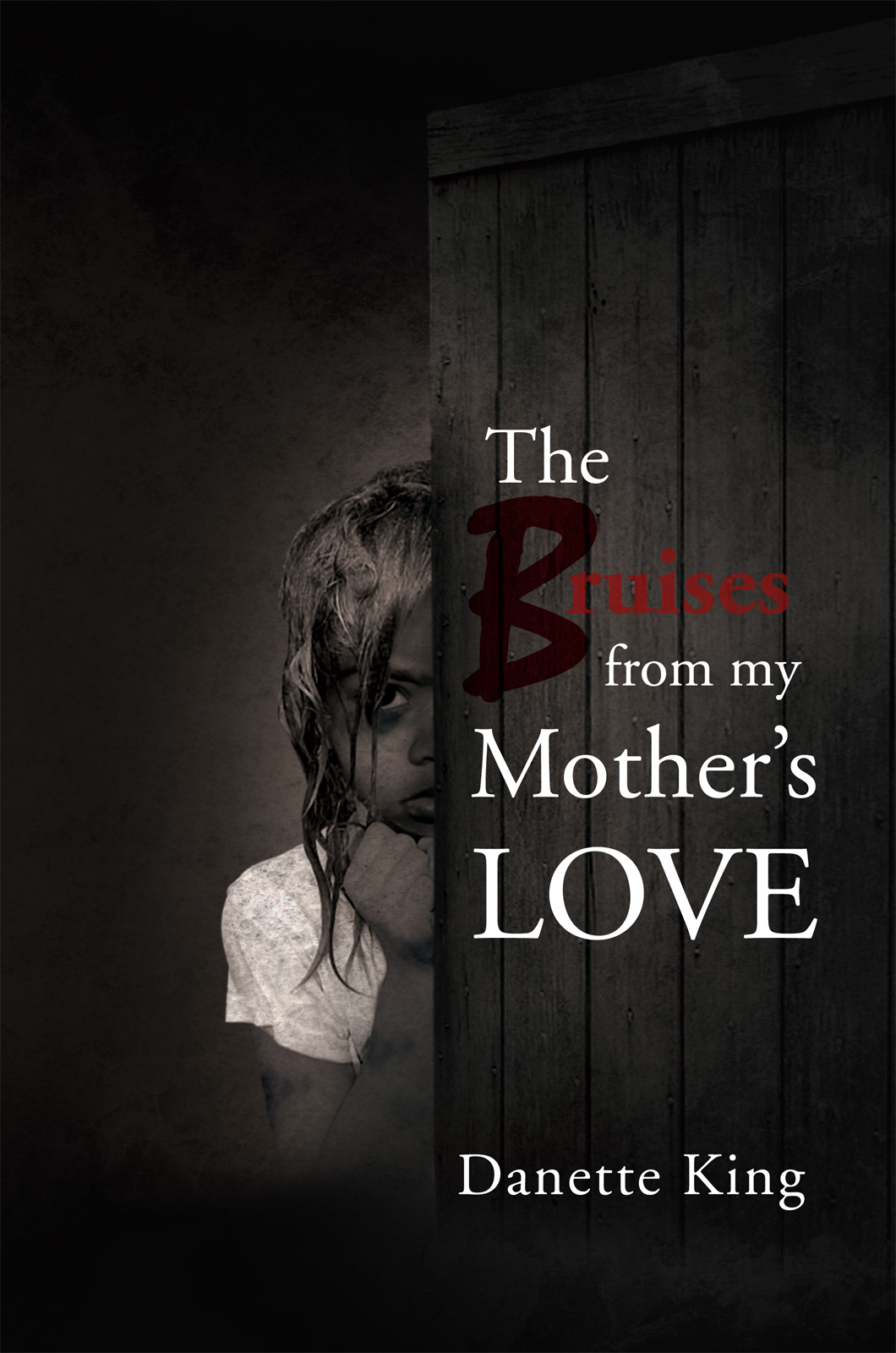 The Bruises from my Mother's LOVE
