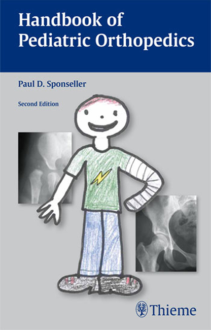 Handbook of Pediatric Orthopedics By: Paul D Sponseller