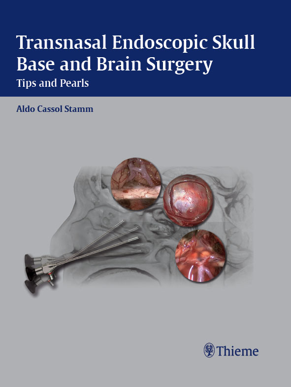 Transnasal Endoscopic Skull Base and Brain Surgery By: