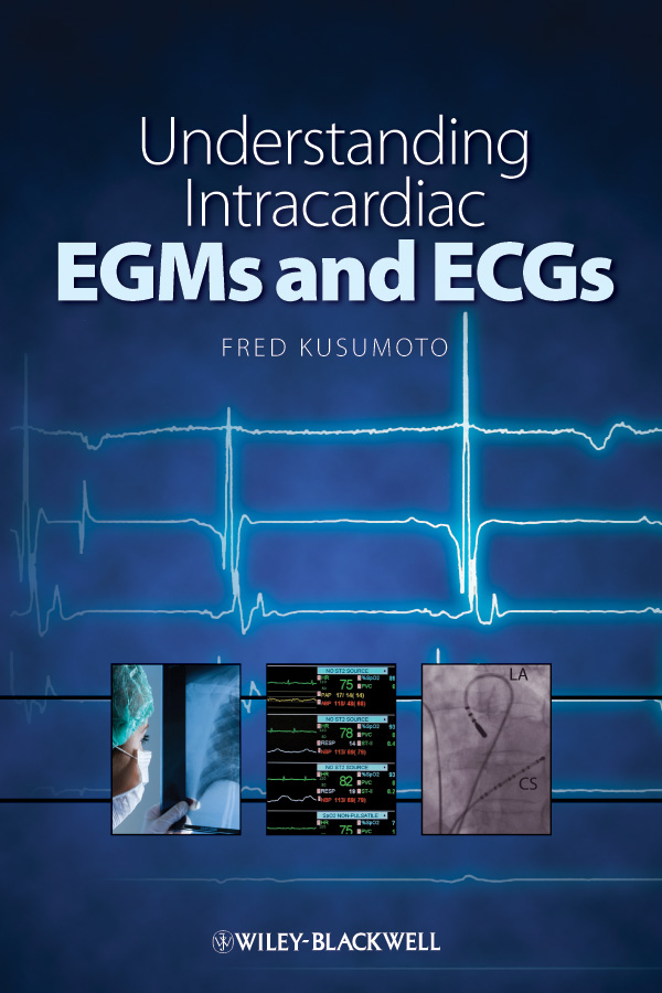 Understanding Intracardiac EGMs and ECGs