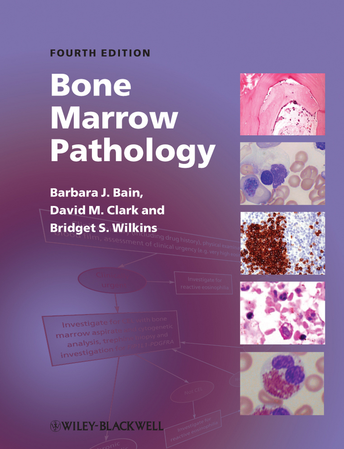 Bone Marrow Pathology By: Barbara J. Bain,Bridget S. Wilkins,David M. Clark