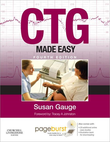 CTG Made Easy By: Susan Gauge