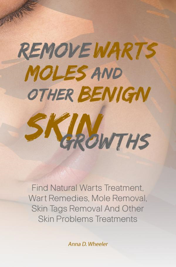 Remove Warts, Moles And Other Benign Skin Growths