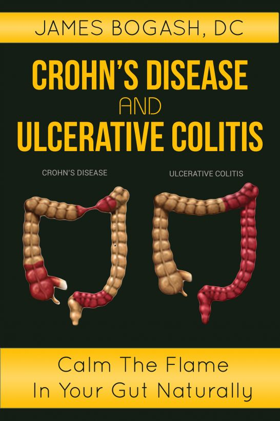 Crohn's Disease and Ulcerative Colitis: Calm the Flame in Your Gut Naturally By: James Bogash, DC