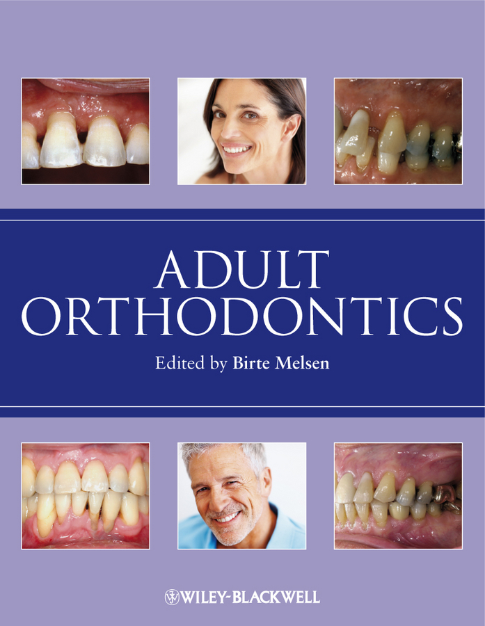 Adult Orthodontics By: