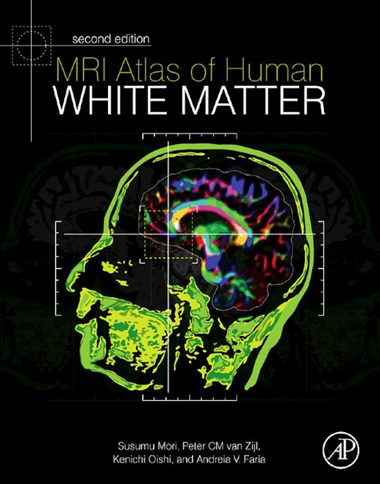 MRI Atlas of Human White Matter 2nd Edition