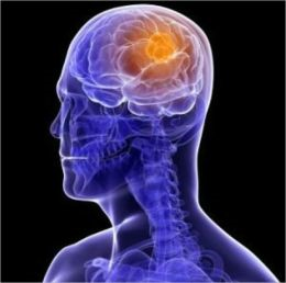 An Informative Guide About Brain Tumors