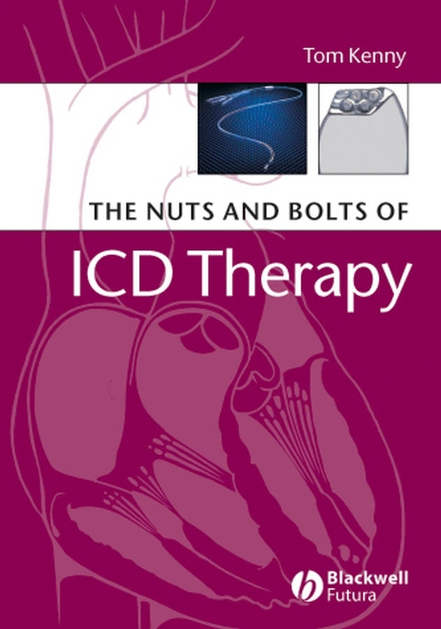 The Nuts and Bolts of ICD Therapy