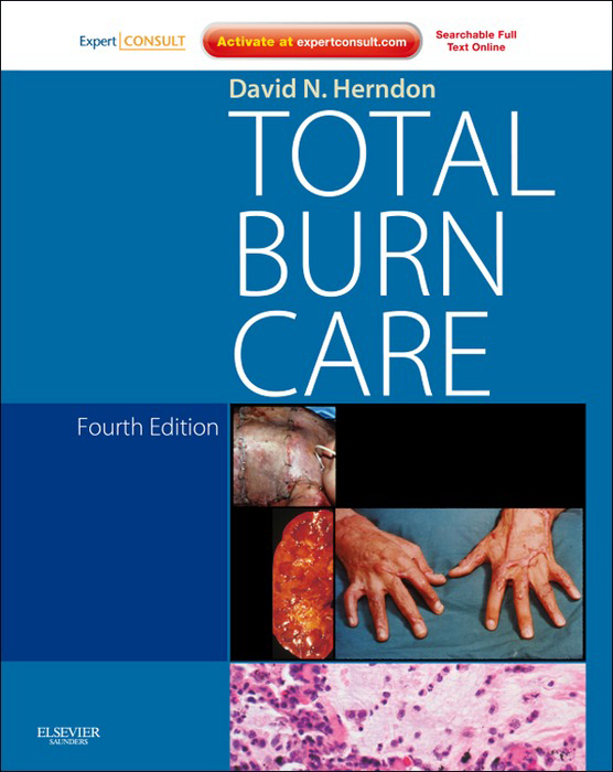 Total Burn Care By: David N. Herndon