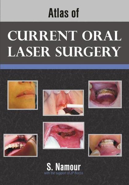 Atlas of Current Oral Laser Surgery