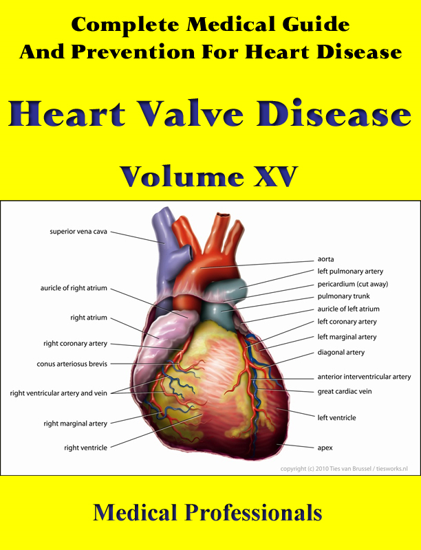 Complete Medical Guide and Prevention for Heart Diseases Volume XV; Heart Valve Disease