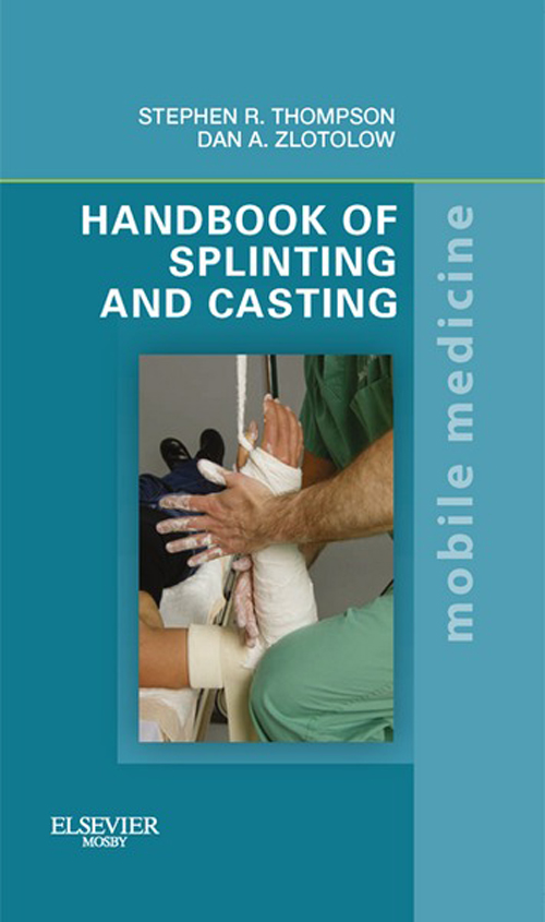 Handbook of Splinting and Casting