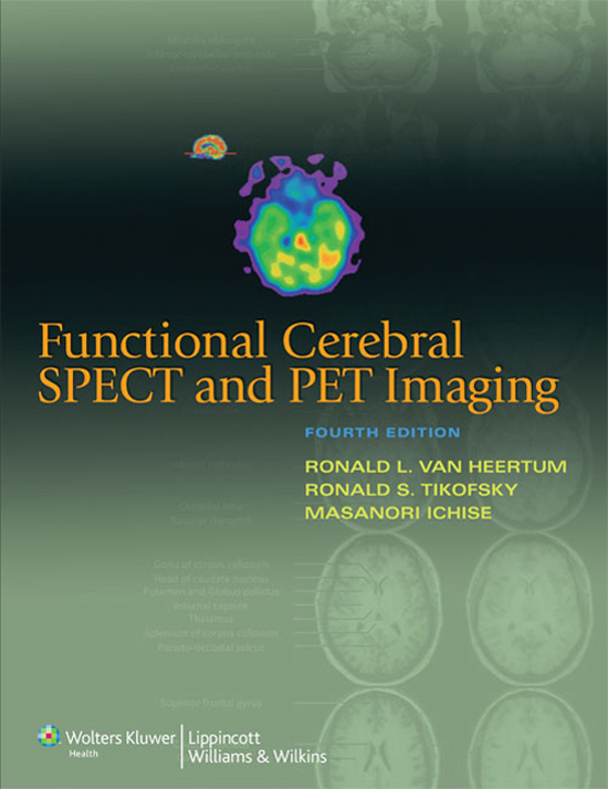 Functional Cerebral SPECT and PET Imaging
