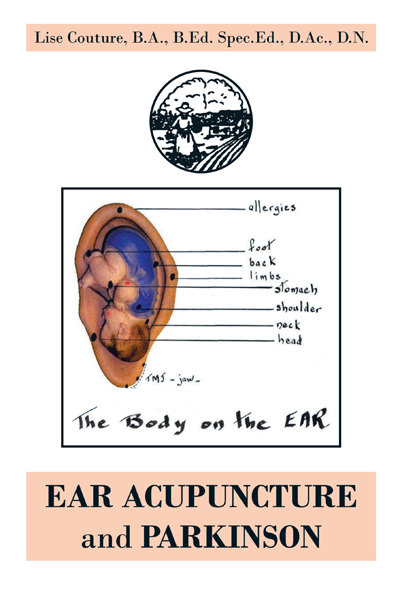 EAR ACUPUNCTURE and PARKINSON By: Lise Couture