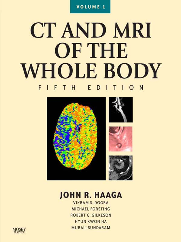 Computed Tomography & Magnetic Resonance Imaging Of The Whole Body