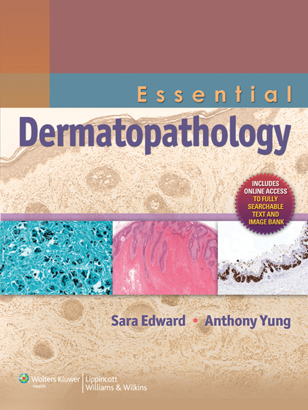 Essential Dermatopathology