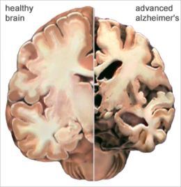 An Informative Guide About Alzheimer's Disease