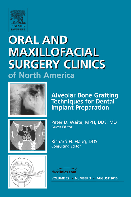Alveolar Bone Grafting Techniques in Dental Implant Preparation, An Issue of Oral and Maxillofacial