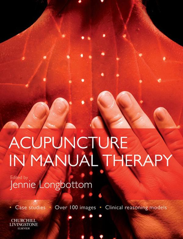 Acupuncture in Manual Therapy By: Jennie Longbottom