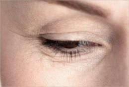 Curing Wrinkles: Top Wrinkle Causes To Avoid, Natural Wrinkle Treatments and Proven Skin Care Tips To Keep You Looking Young