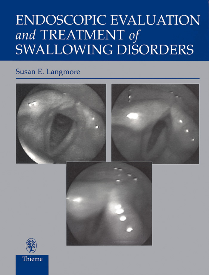 Endoscopic Evaluation and Treatment of Swallowing Disorders