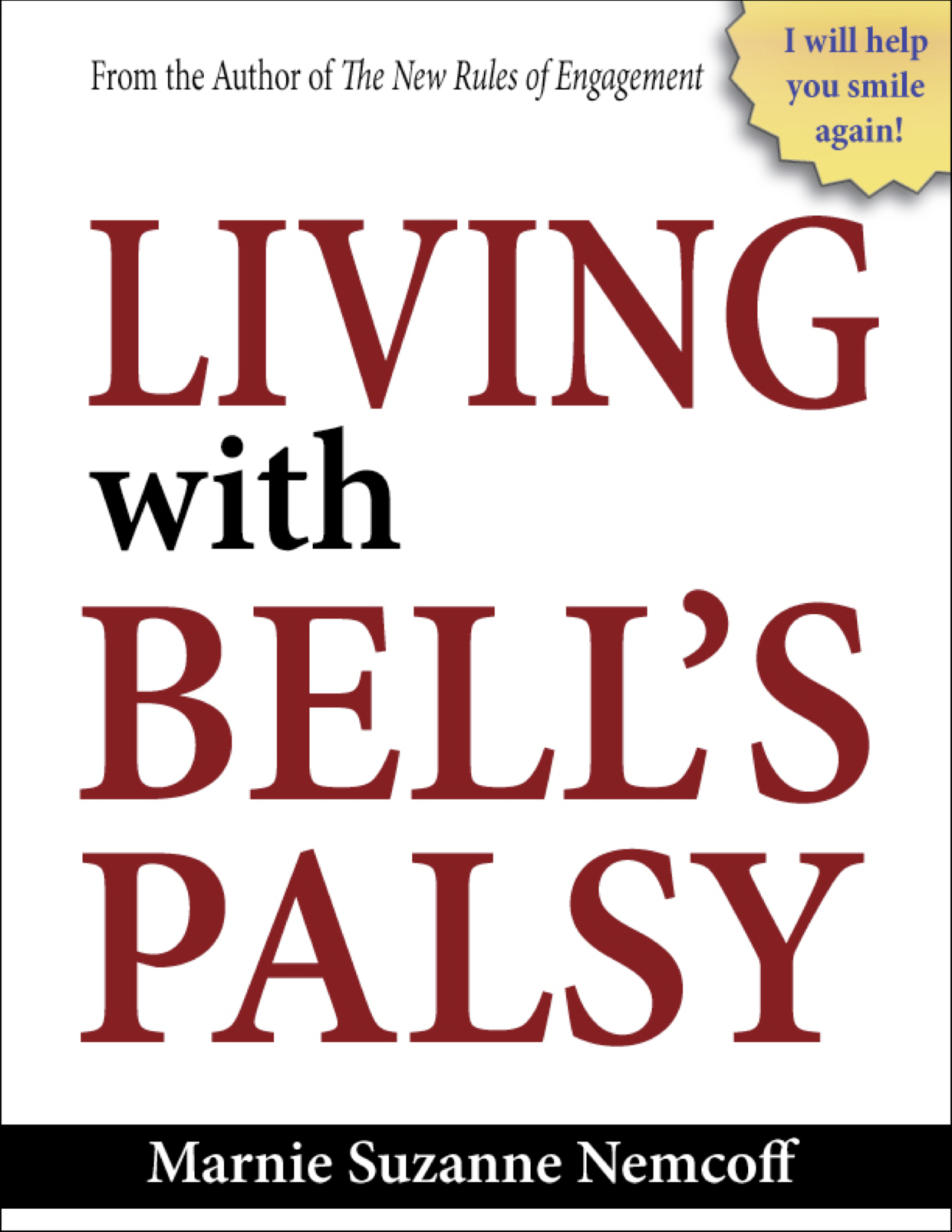 Living with Bells Palsy