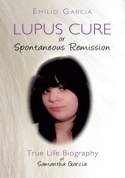 Lupus Cure or Spontaneous Remission By: Emilio Garcia