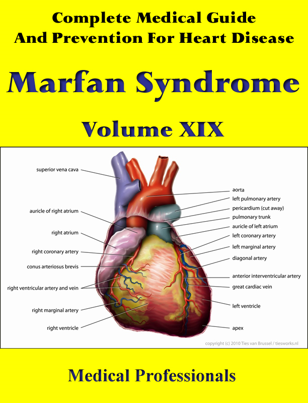 A Complete Medical Guide and Prevention For Heart Diseases Volume XIX; Marfan Syndrome