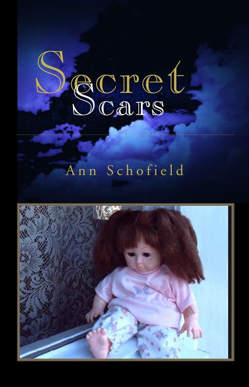 Secret Scars By: Ann Schofield