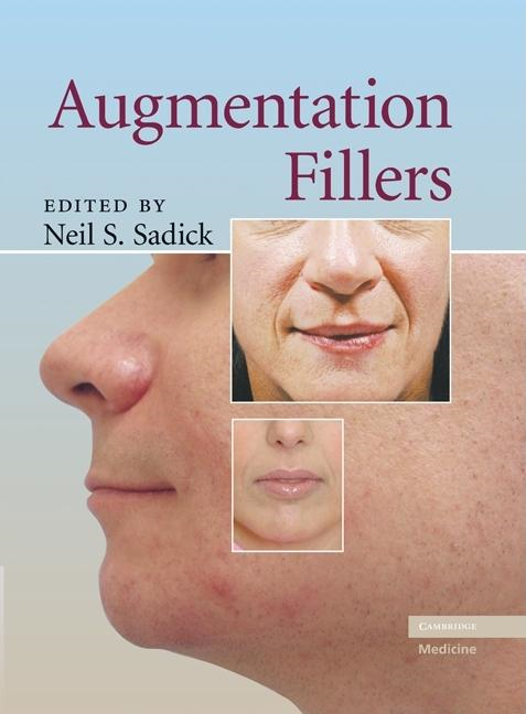Augmentation Fillers By: Sadick, Neil S.