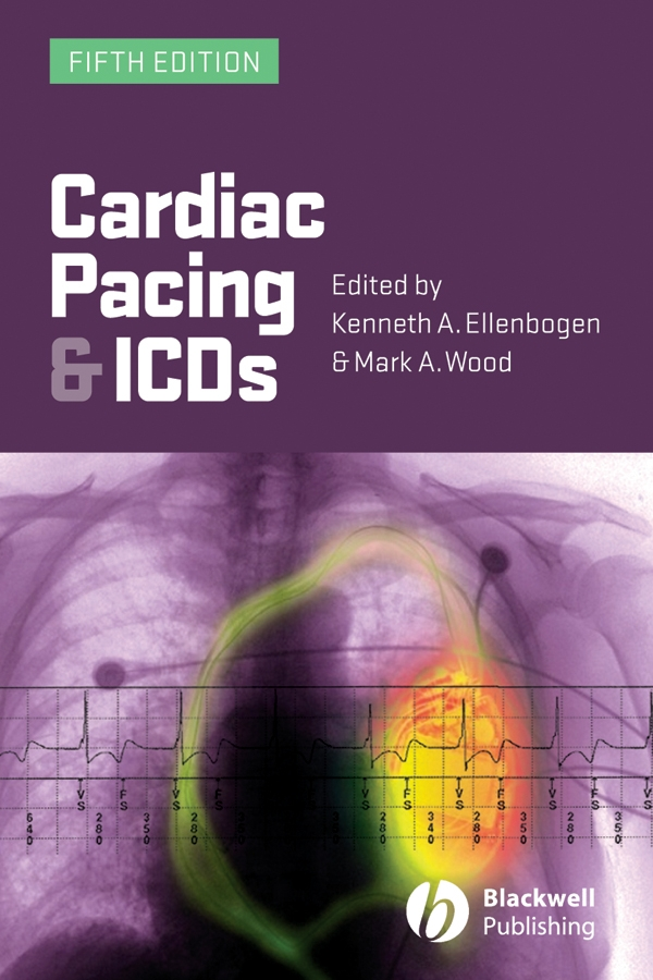 Cardiac Pacing and ICDs By: Kenneth A. Ellenbogen,Mark A. Wood