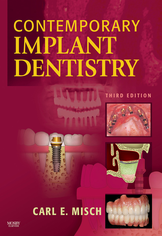 Contemporary Implant Dentistry By: Carl E. Misch