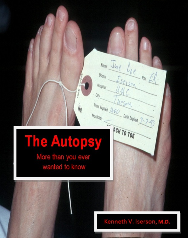 The Autopsy: More than you ever wanted to know