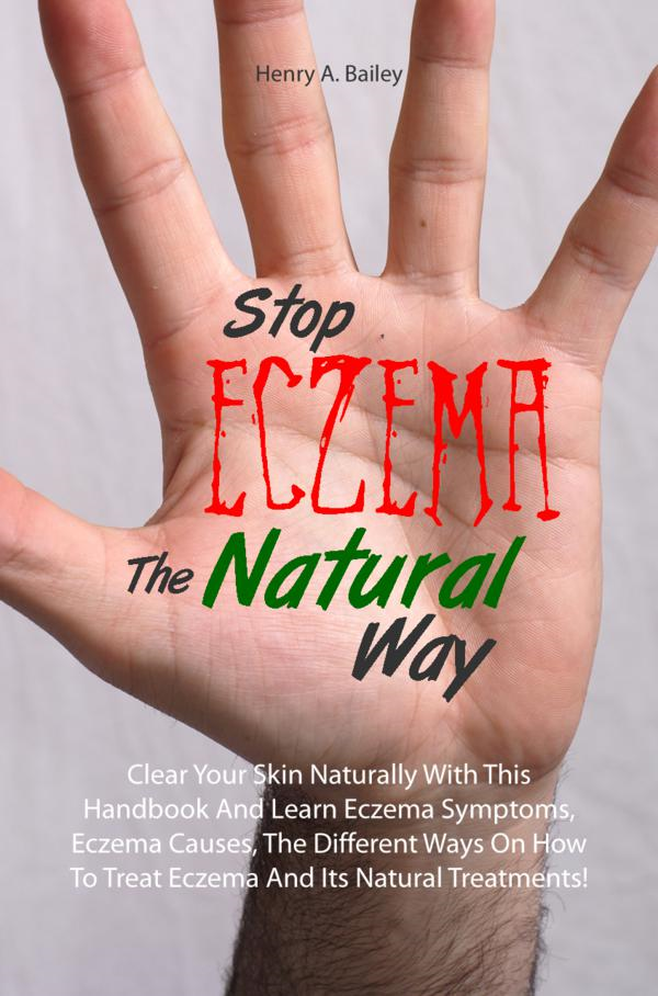 Stop Eczema The Natural Way By: Henry A. Bailey