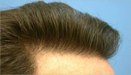 Hair Transplant Surgery: Everything You Need To Know Prior To Getting Hair Transplant Surgery