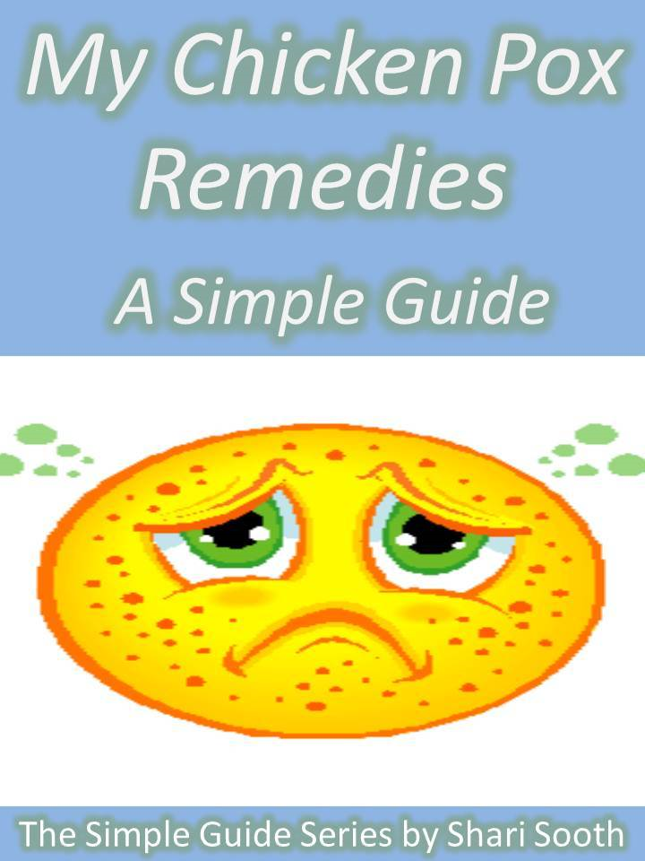 My Chicken Pox Remedies: A Simple Guide