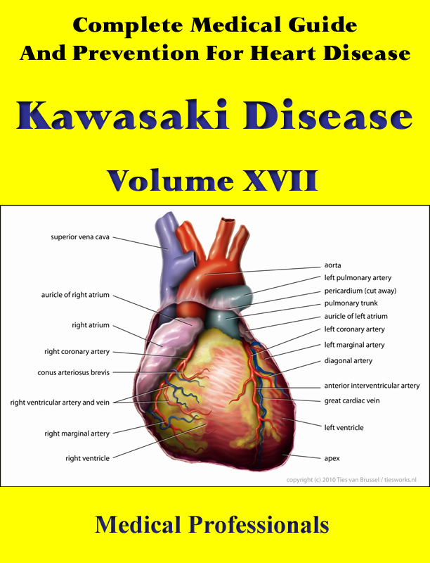 A Complete Medical Guide and Prevention For Heart Diseases Volume XVII; Kawasaki Disease