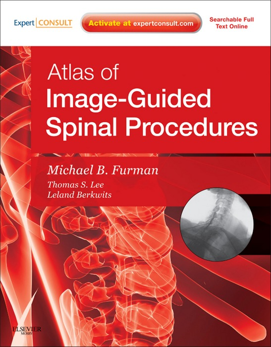 SPEC - Atlas of Image-Guided Spinal Procedures 12 Month Subscription By: Michael Bruce Furman