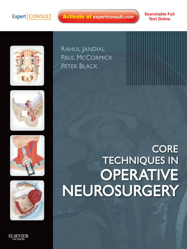 Core Techniques in Operative Neurosurgery By: Paul McCormick,Peter M Black,Rahul Jandial