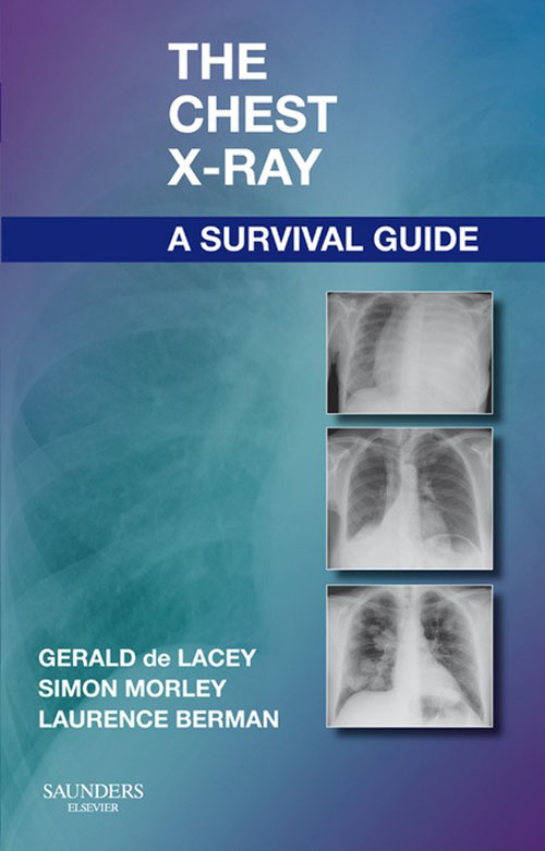 The Chest X-Ray: A Survival Guide By: Gerald de Lacey,Laurence Berman,Simon Morley