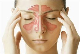 Acute Sinusitis: Causes, Symptoms and Treatments By: Larry Cross